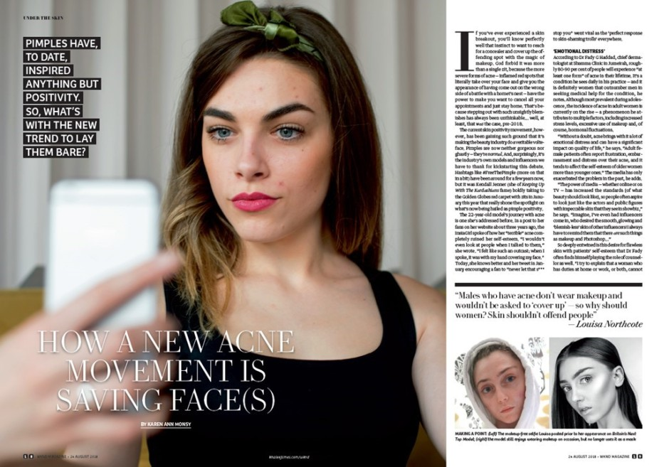 The Tezzy Files Beauty Blogger Pimple Positivity Dubai UAE Wknd Magazine Khaleej Times1